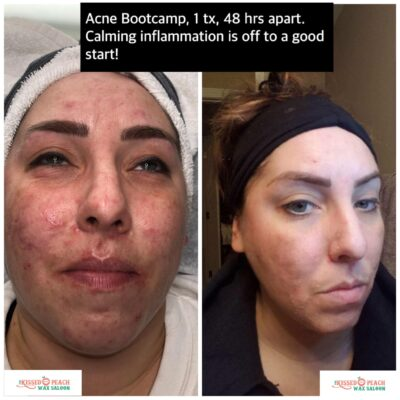 Our Acne Bootcamp is Life-Changing